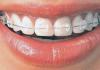 Cateva sfaturi de care sa tii cont atunci cand porti un aparat ortodontic